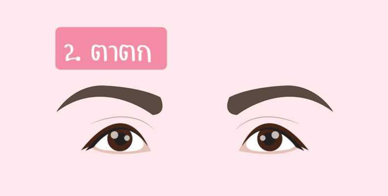 ตาตก (หางตาคล้อยต่ำกว่าหัวตา)